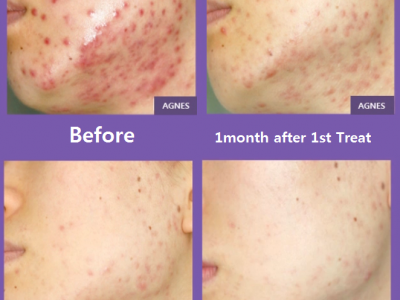 AGNES acne