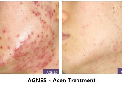 Acne-AGNES