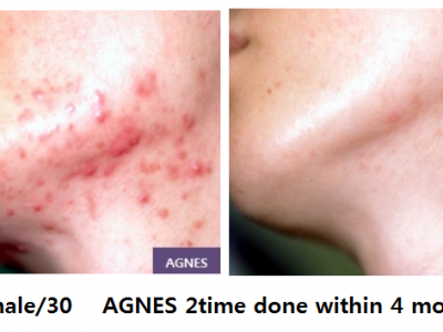 Acne-AGNES2
