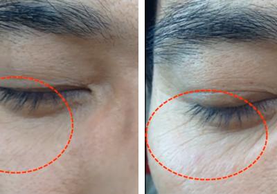 Eye Wrinkle-AGNES
