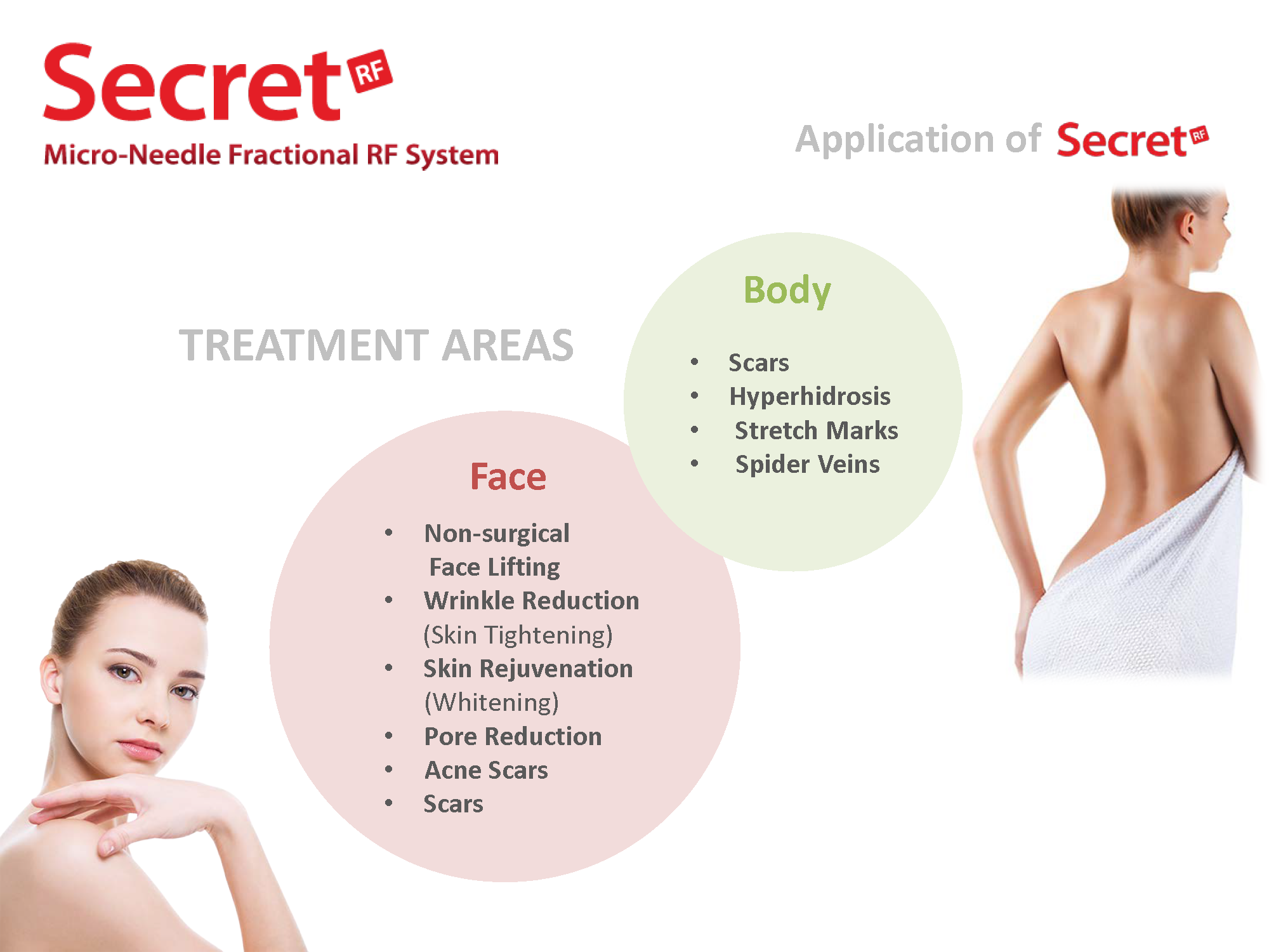 Secret RF | Cleopatra Laser Skin Clinic