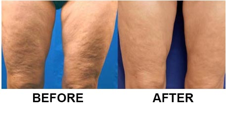 before-after-legs